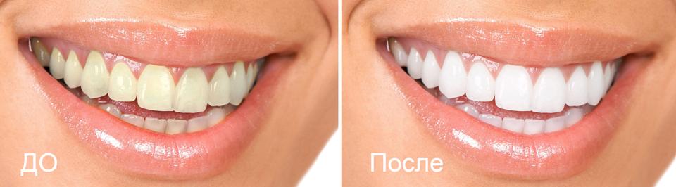 Отбеливание зубов_ZOOM_белоснежные_улыбка