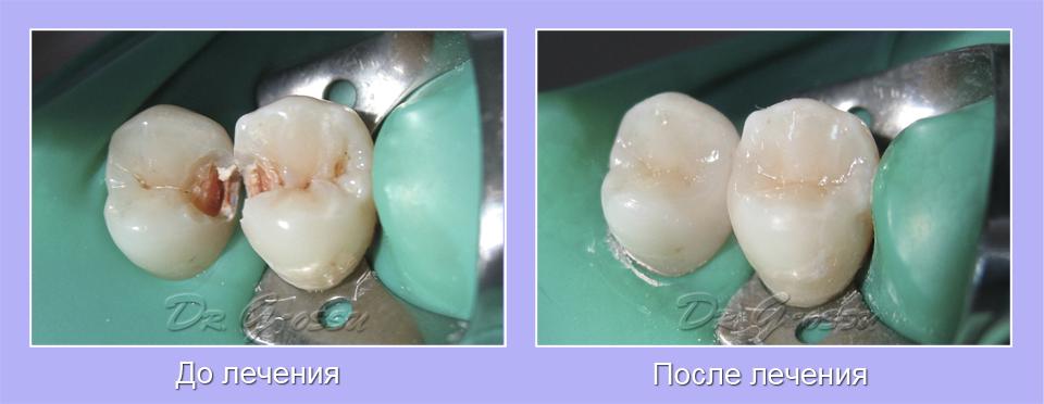 Реставрация зубов_клиника_Гроссу_стоматология Кишинев