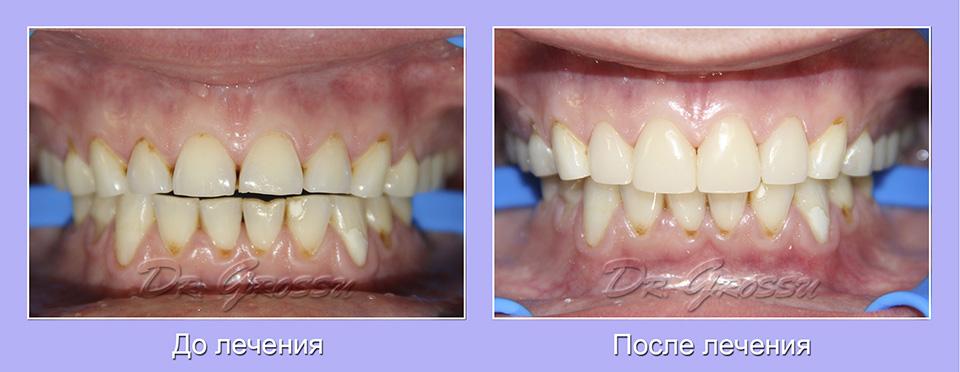 Реставрация_кариес_лечение_стоматолог