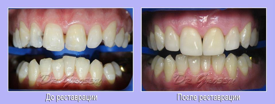 Рестврация зубов