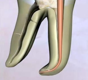 Эндодонтия - гутаперча - стоматологическая клиника