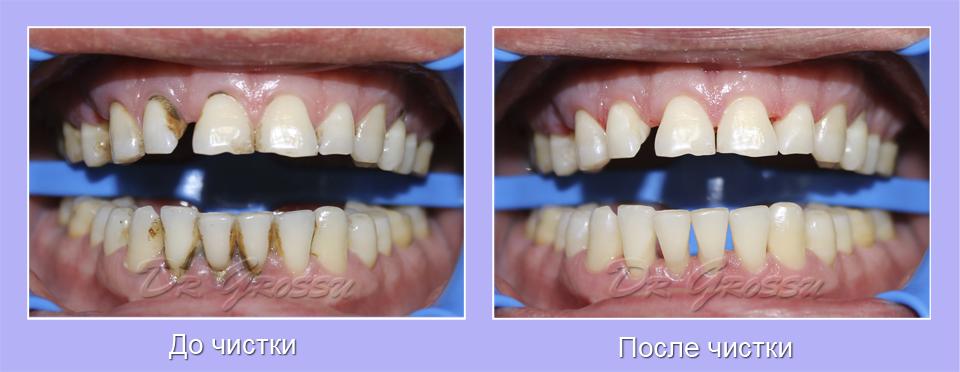 Чистка зубов от зубного камня ультразвуком отзывы