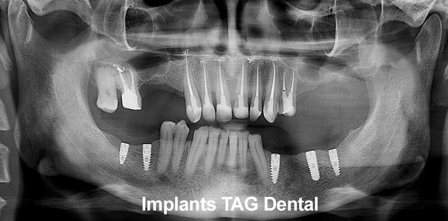 Implant_dinte_proteza_implantare_stomatolog
