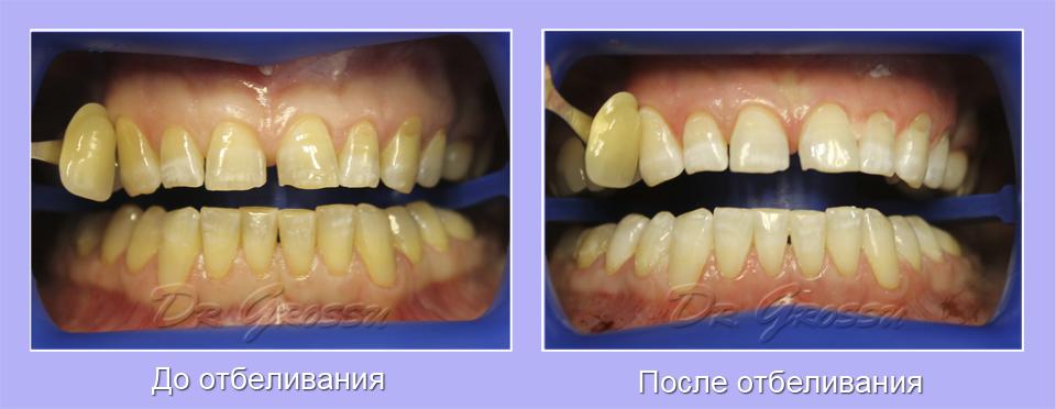 Белые зубы_ZOOM_отбеливание_стоматология_Владимир