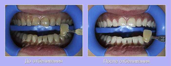 Отбеливание_керамика_зубы_Гроссу_стоматология