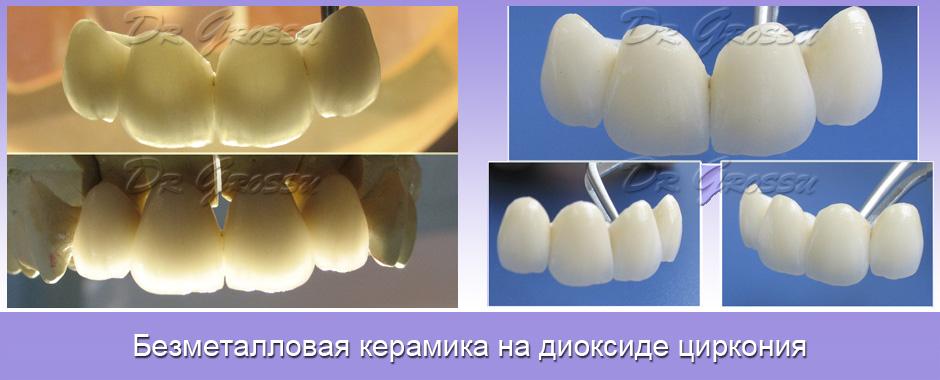 Цирконии_керамика_протезирование_зуб
