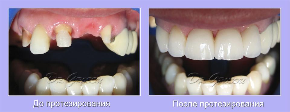 Цирконий_керамика_клиника_Гроссу_стоматолог